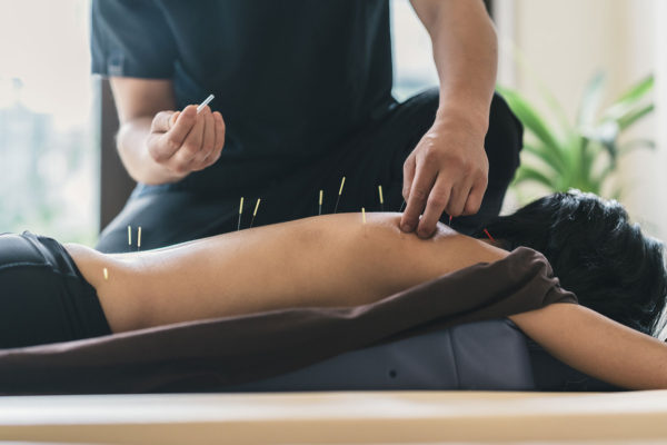 Akupunktur - 10 behandlinger